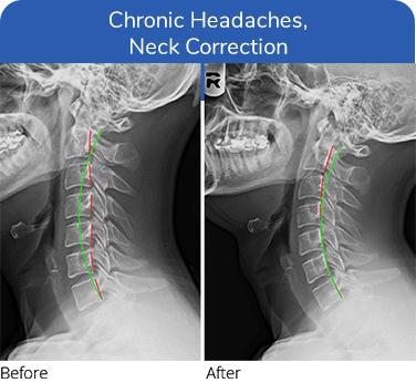Chiropractic Plano TX Chronic Headaches