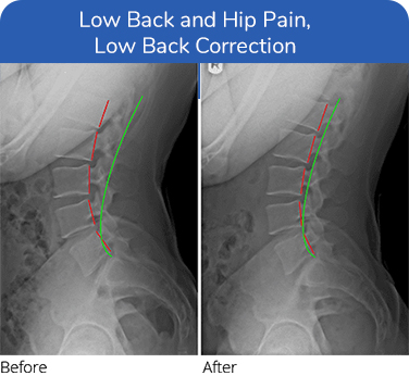 Chiropractic Plano TX Low Back Hip