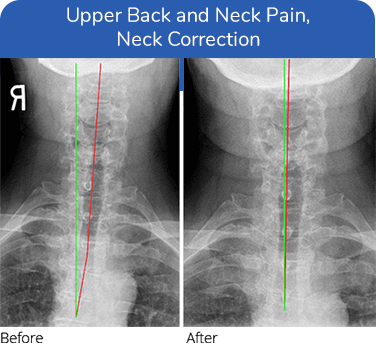 Chiropractic Plano TX Upper Back and Neck